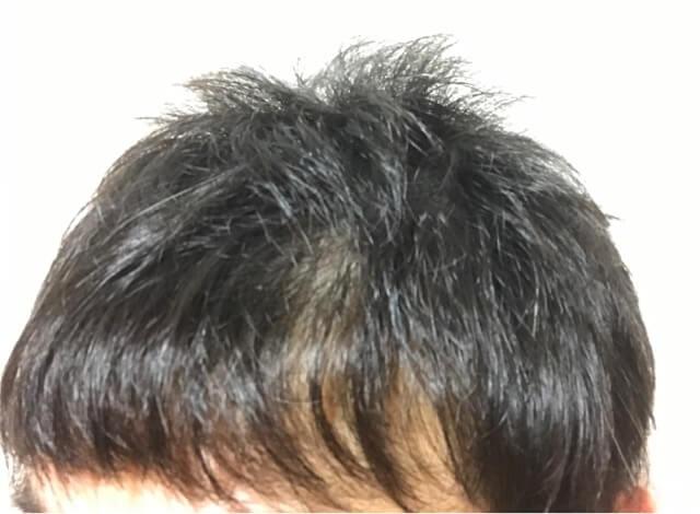 育毛を始める前のスカスカの髪の毛左側