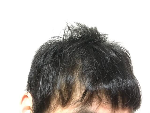 育毛を始める前のスカスカの髪の毛