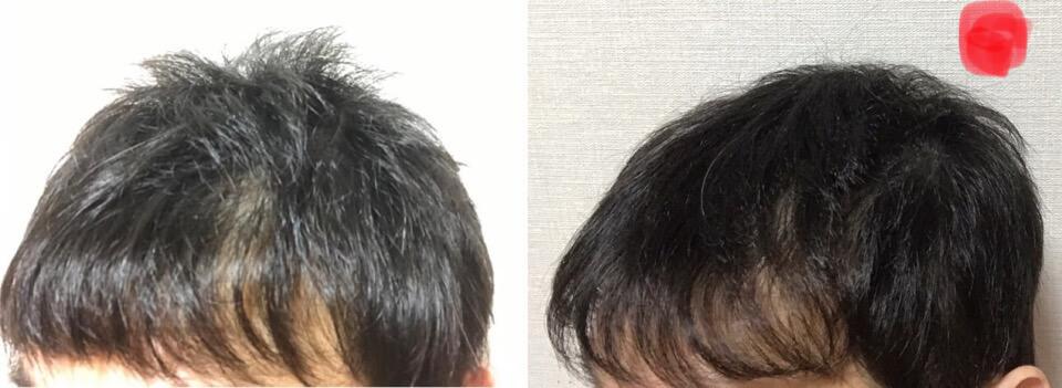 イワシ缶生活育毛2か月の右側の髪の毛の変化
