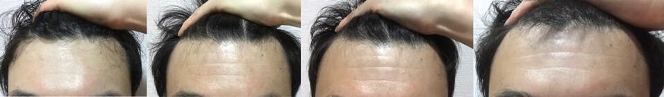 イワシ缶で育毛3か月の変化おでこの髪の毛