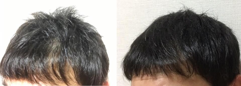 イワシ缶で育毛3か月間の成果右側の髪の毛