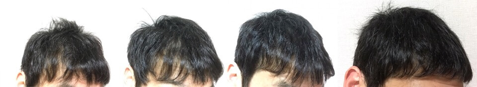 4カ月の髪の毛の変化