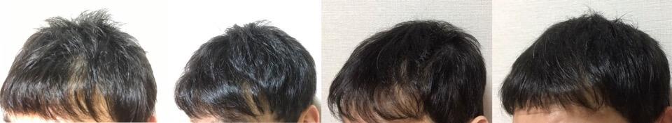 イワシ缶で育毛3か月の変化左側の髪の毛