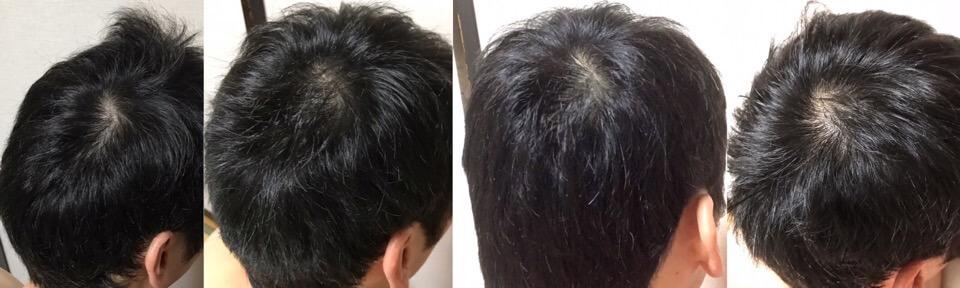 イワシ缶で育毛3か月の変化つむじの髪の毛