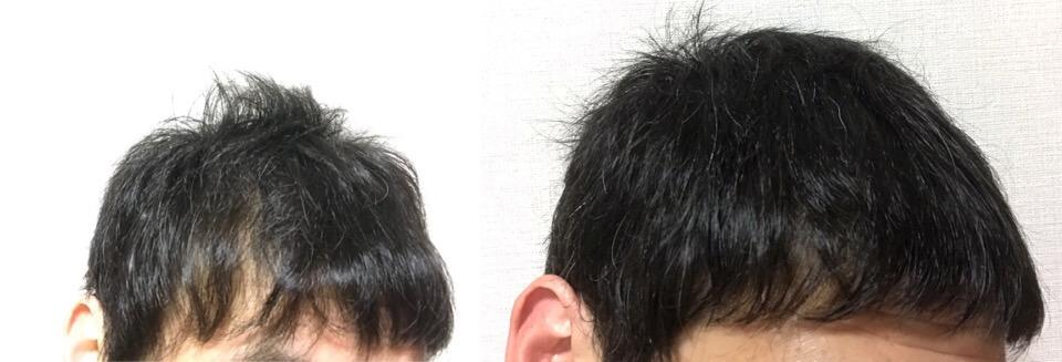 イワシ缶で育毛の3カ月の成果左側の髪の毛