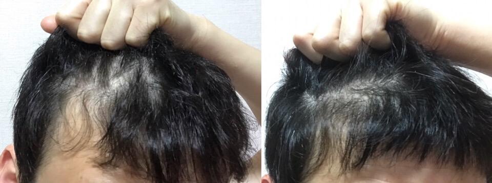 イワシ缶3か月育毛の薄毛具合