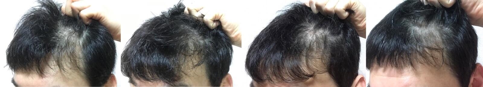 イワシ缶で育毛3か月の変化左側の髪の毛を上げた時