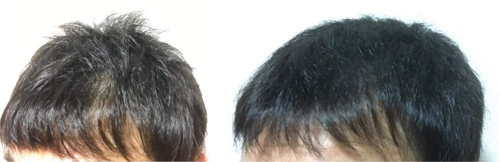 育毛をした髪の毛の変化
