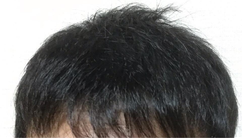 ミノキシジルと髪様シャンプーを4カ月育毛した正面の髪の毛