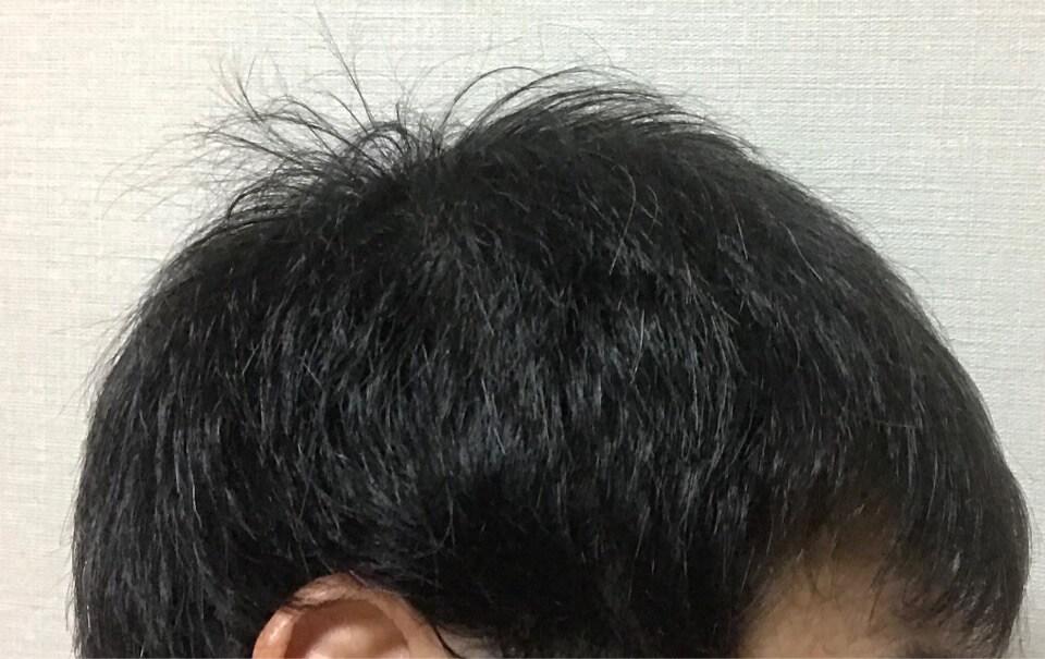 ミノキシジルと髪様シャンプーを4カ月育毛した右側髪の毛