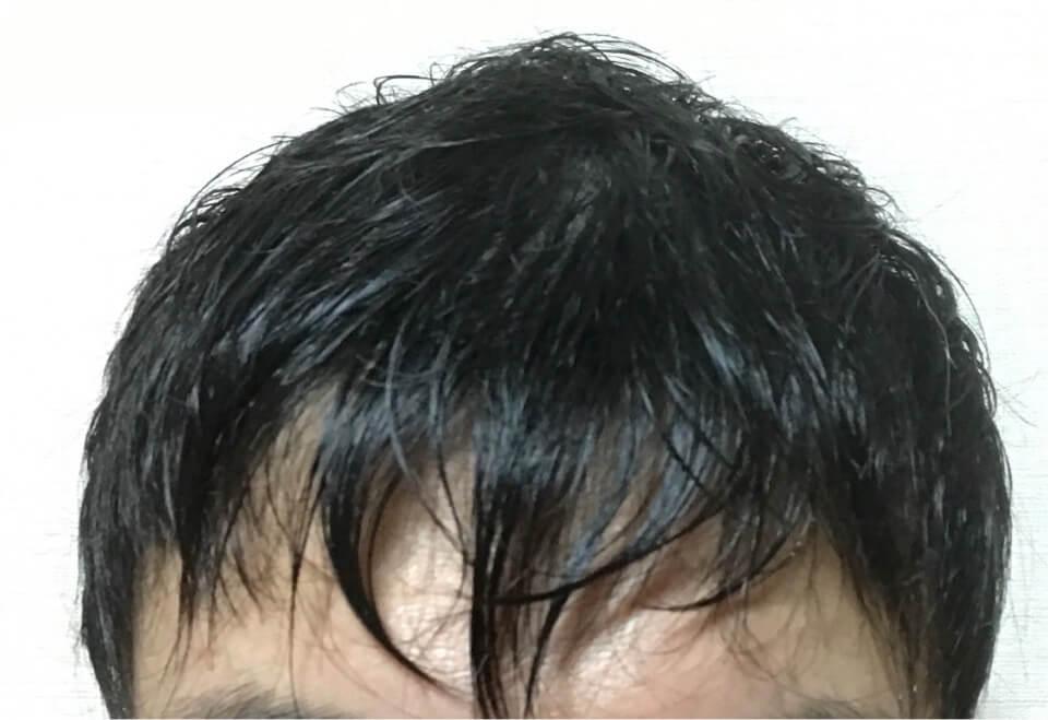 お風呂後の濡れた髪の毛
