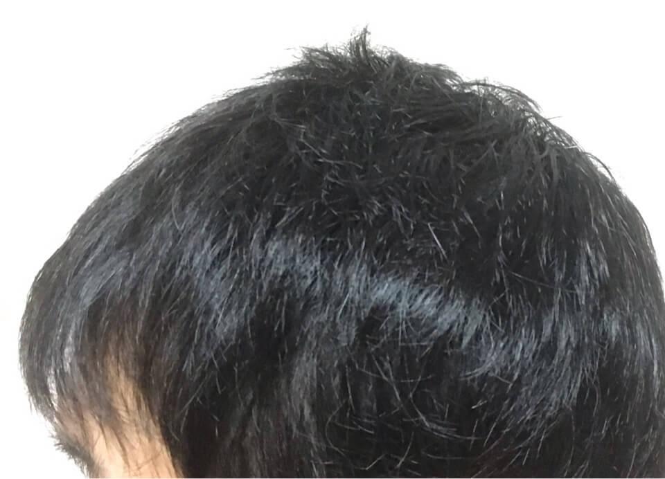 ミノキシジルと髪様シャンプーを4カ月育毛した左側髪の毛