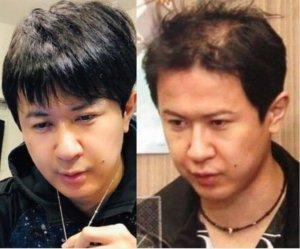 杉田智和のハゲてる頃と育毛で増えた髪の毛比較