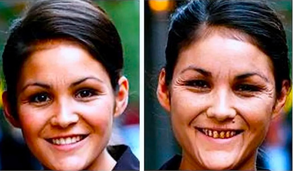 喫煙は絶対にダメ!双子で見る喫煙でのハゲ具合