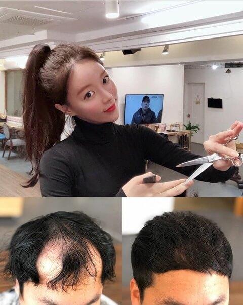 美人韓国美容師のハゲ隠し技術
