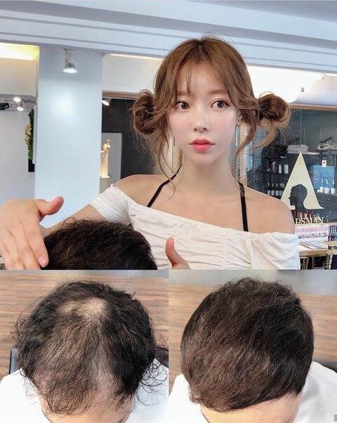 韓国美女ハゲ隠し