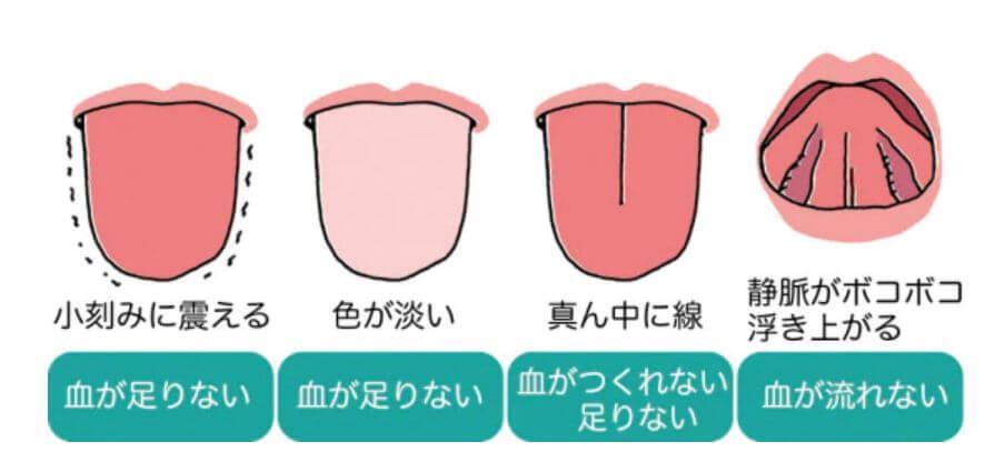 舌を見れば血液の状態がわかる