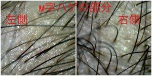 M字の所は毛が細い