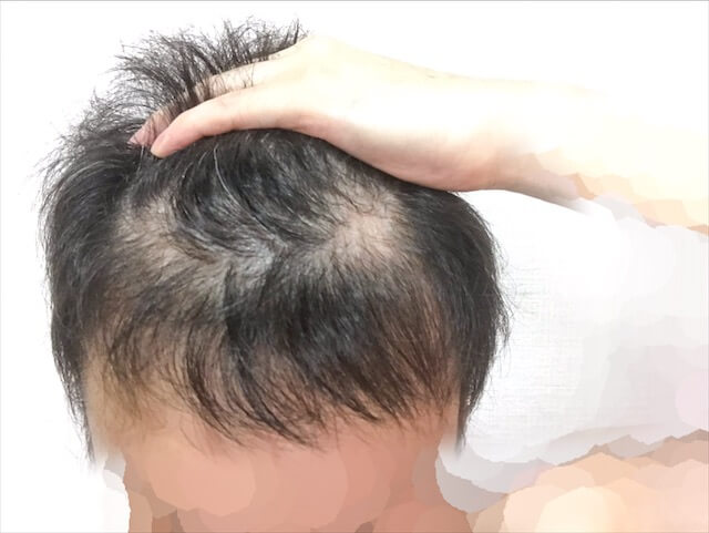 薄毛ハゲ頭